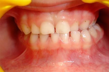 Ortodoncia Preventiva En Niños 1