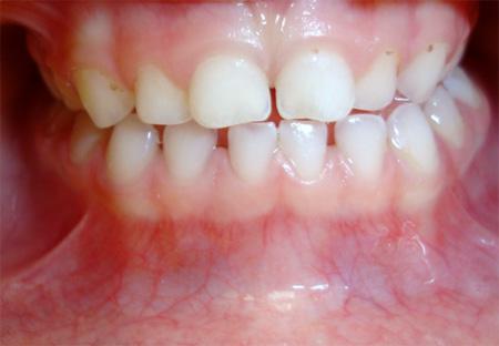 Ortodoncia Preventiva En Niños 3