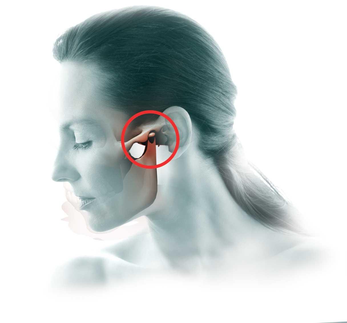 articulacion-temporo-mandibular-1