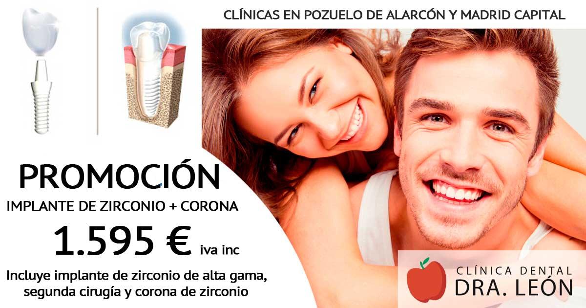 promoción de implantes dentales en Pozuelo de Alarcón y Madrid